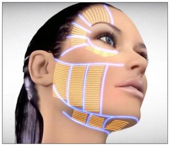tratament-facial-hifu